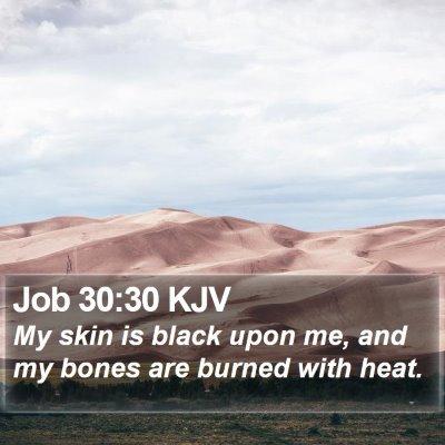 Job 30:30 KJV Bible Verse Image