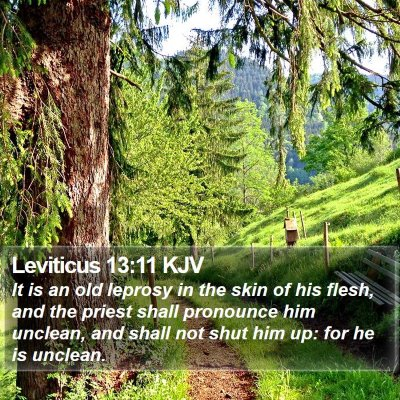 Leviticus 13:11 KJV Bible Verse Image